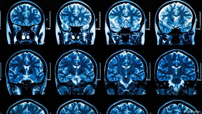MRI images 9.24.2021.jpg
